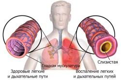 Воспаление легких при бронхите
