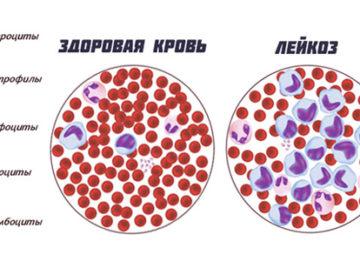 Диагностика и лечение хронического миелоидного лейкоза