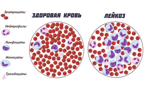Здоровая кровь и лейкоз