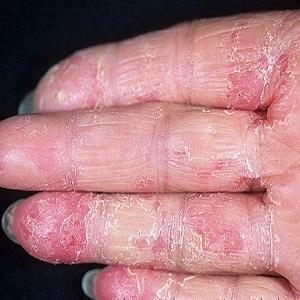Аллергическая реакция на серебряные изделия