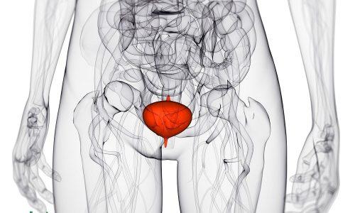 Воспаление мочевого пузыря у женщин - распространенная проблема, которая сопровождается сильным ухудшением самочувствия, развитием болей и дискомфорта, связанного с мочеиспусканием
