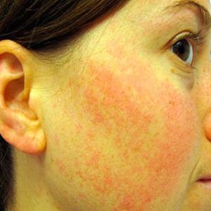Сыпь на коже аллергическая реакция на сыр