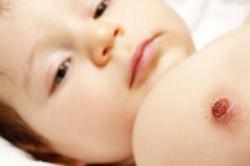 Возникновение язвочки после прививки