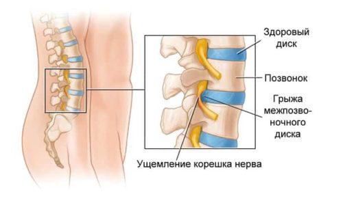 Межпозвоночная грыжа - это дегенеративное заболевание межпозвоночного диска, при котором нарушается его целостность и структура
