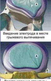 Холодноплазменная нуклеопластика - удаление грыжи дисков
