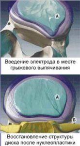 Проведение нуклеопластики на позвоночный диск
