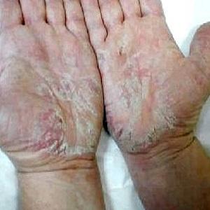 Одно из проявление аллергического дерматита на руках