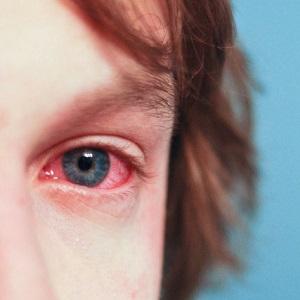 Покраснение глаз, слезоточивость