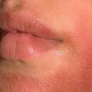 Покраснение кожи лица, при употреблении корицы в пищу
