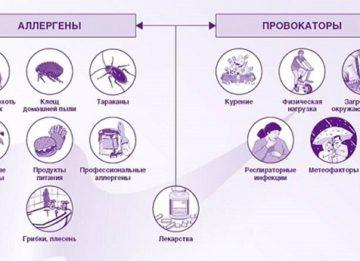Способы выявления аллергена у ребенка