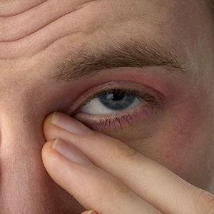 Покраснение и слезоточение глаз