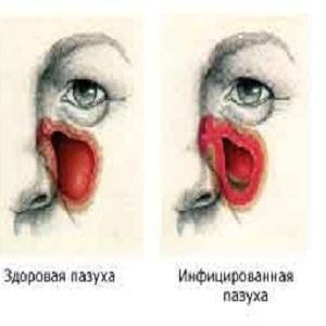Различие между здоровой и инфицированной пазухой
