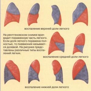 Типы воспаления легких