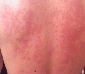 У ребенка аллергия на морковь