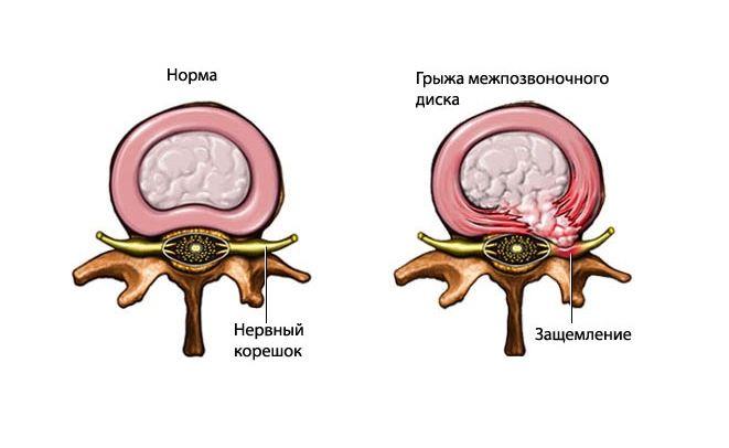 Защемление нервного корешка